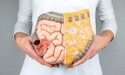 """8 พฤติกรรมเสี่ยง """"มะเร็งลำไส้ใหญ่"""" ที่คุณอาจไม่รู้ตัว"""
