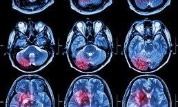 """ปวดหัวแบบไหน เสี่ยง """"เนื้องอกในสมอง"""""""