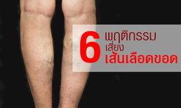 """6 พฤติกรรมเสี่ยง """"เส้นเลือดขอด"""" ที่คุณอาจไม่ทราบมาก่อน"""