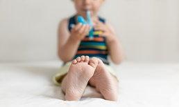 """""""มือ เท้า ปาก"""" ระบาดหนักในเด็กเล็ก พบป่วย 50,000 เสียชีวิต 3 ราย"""