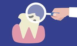 ก่อนสิ้นปี อย่าลืมใช้สิทธิประกันสังคมทำฟัน 900 บาท/คน/ปี