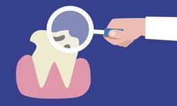 สุขภาพฟันวัยทำงาน ปัญหาใหญ่ที่อย่าชะล่าใจ