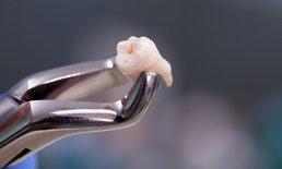 """เข้าใจใหม่! แบคทีเรียทำให้ฟันผุ ไม่ใช่ """"แมงกินฟัน"""""""
