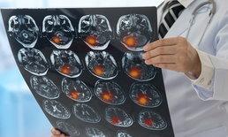 """4.5 ชม. ชั่วโมงทอง ลดเสี่ยงอัมพาต เพิ่มโอกาสรอดโรค """"หลอดเลือดสมอง"""""""