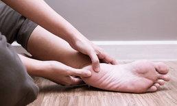 """ปวดส้นเท้าหรือฝ่าเท้าทุกเช้าหลังตื่นนอน อาจเป็น """"โรครองช้ำ"""""""