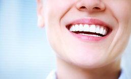 """""""วีเนียร์"""" ฟันขาวเรียงขนาดสวยราวกับดารา กับ 10 ข้อเสียที่ควรทราบก่อนทำ"""