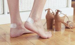 """""""ตุ่มพอง"""" จากการเสียดสี-รองเท้ากัด-น้ำร้อนลวก ควรเจาะดีหรือเปล่า?"""
