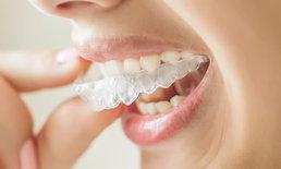 """""""รีเทนเนอร์"""" หลังจากจัดฟัน สำคัญอย่างไร? ไม่ใส่ได้ไหม?"""