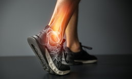 ข้อเท้าแพลง อย่านิ่งนอนใจ อาจอันตรายถึงขั้นต้องผ่าตัด