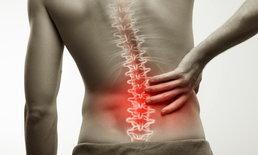 """วัยทำงานนั่งหน้าคอม เสี่ยง """"โรคข้อกระดูกสันหลังอักเสบชนิดติดยึด"""""""