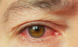 """5 วิธีป้องกัน """"ตาแดง"""" โรคระบาดหน้าฝน"""