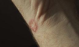 """""""โรคผื่นรูปเหรียญ"""" ภาวะแพ้ฝุ่นพิษ-สารเคมี"""