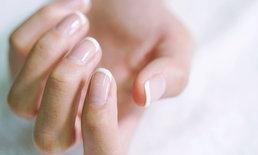 """รอย """"พระจันทร์เสี้ยว"""" สีขาวบนเล็บนิ้วมือ บอกสุขภาพเราได้จริงหรือ?"""