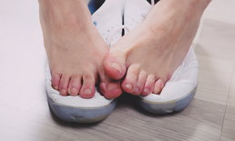 """สังเกตอาการ """"โรคเท้าเป็นรู"""" สาเหตุ """"เท้าเหม็น"""" ที่คุณอาจไม่รู้"""