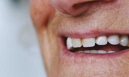 """""""ผู้สูงอายุ"""" กับปัญหาสุขภาพช่องปาก แนะลดกินอาหารหวาน-เหนียว"""