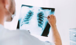 """แพทย์แนะ 4 กลุ่มเสี่ยงตรวจคัดกรอง """"มะเร็งปอด"""" เจอเร็ว รักษาได้"""