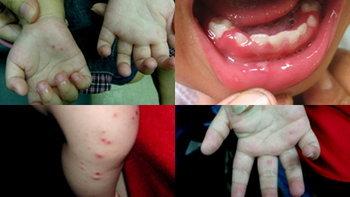 โรคมือเท้าปาก มีอาการอย่างไร และวิธีป้องกันโรคมือเท้าปาก