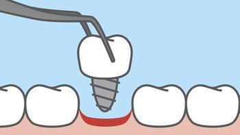 """""""รากฟันเทียม"""" คืออะไร? ช่วยแก้ไขปัญหาฟันได้อย่างไรบ้าง?"""