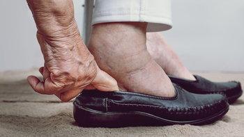 """10 สาเหตุที่ทำให้ """"เท้าบวม"""""""