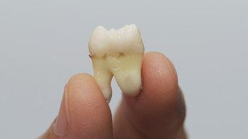 วัยทำงาน เสี่ยง 5 ปัญหาโรคฟันที่อาจเป็นโดยไม่ทันตั้งตัว