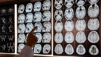 """""""ภาวะหลอดเลือดสมองโป่งพอง"""" คืออะไร? สาเหตุ และวิธีป้องกัน"""