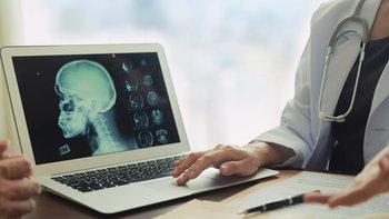 """""""หลอดเลือดสมองตีบ-ตัน"""" อันตรายถึงชีวิต เปิดหลอดเลือดสมอง ลดความเสี่ยงอัมพาต"""