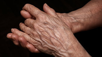 เส้นเลือดที่มือปูดโปนออกมา เป็นเพราะอะไร?