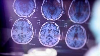 """สัญญานอันตราย วัย 40+ เสี่ยง """"สมองเสื่อมรุนแรง"""" อย่างรวดเร็ว"""