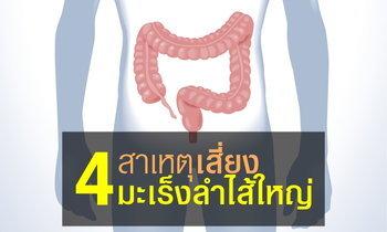 """4 สาเหตุหลักที่คนไทยเสี่ยง """"มะเร็งลำไส้ใหญ่"""" มากขึ้น"""