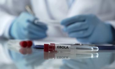 โรคอีโบลา (Ebola) คืออะไร สาเหตุ อาการของโรคเป็นอย่างไร?