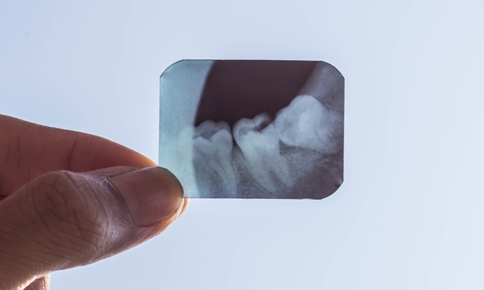 impacted-tooth-2