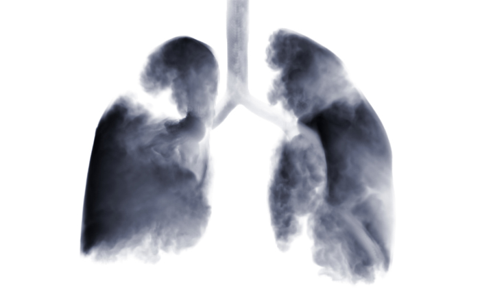 lung-2