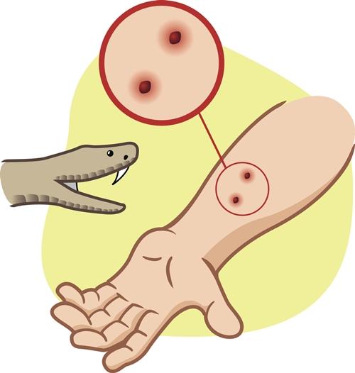 snake-bite-2