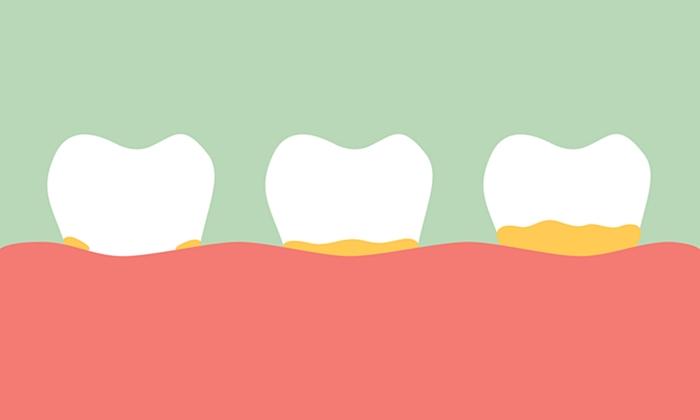 5 สัญญาณอันตรายภายในช่องปาก สาเหตุฟันผุ-เหงือกบวม