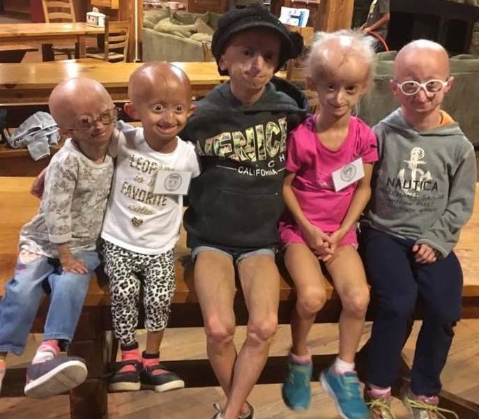 progeria-2