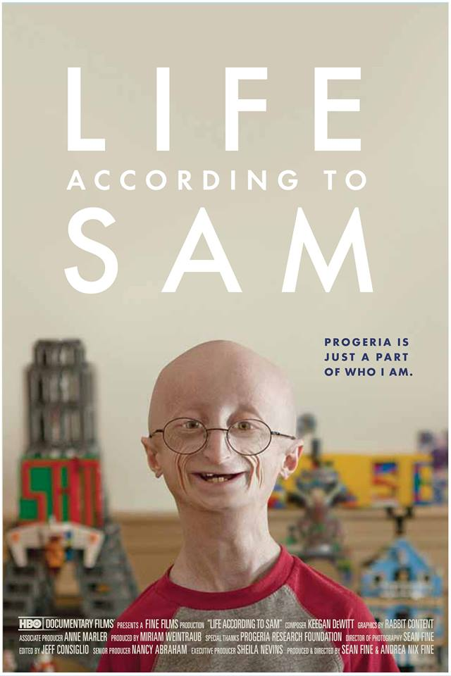progeria-3