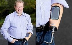 หนุ่มใหญ่วัย 50ปีผู้ที่มี Nokia C7 ติดตั้งในแขนคนแรกในโลก