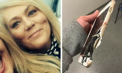 iPhone ช่วยชีวิต! เหยื่อระเบิดแมนเชสเตอร์รอดตายหวุดหวิด หลังสะเก็ดระเบิดพุ่งใส่ iPhone