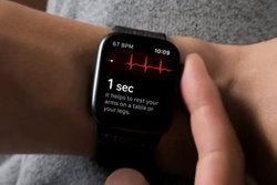 อะไรนะ Apple Watch Series 4 ที่ขายนอกอเมริกา อาจบันทึกคลื่นไฟฟ้าหัวใจ (ECG) ไม่ได้
