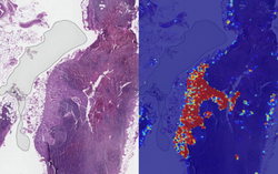 Google AI ตรวจจับเซลล์มะเร็งเต้านมระยะลุกลามได้ดีกว่านักพยาธิวิทยา ให้ความแม่นยำสูงถึง 99%