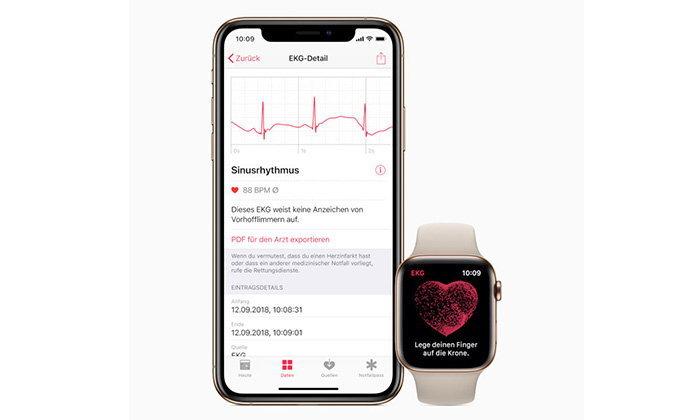 ชาวยุโรปและฮ่องกง เตรียมเฮ Apple ปล่อยแอป ECG ให้ใช้แล้วใน watchOS 5.2