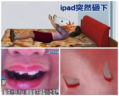 หนูน้อยนอนเล่น New iPad เครื่องร่วงกระแทกหน้าฟันหักยับ! (มีคลิป)