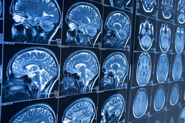ข่าวดี ทีมวิจัยอิตาลีพัฒนา AI วินิจฉัยโรคอัลไซเมอร์ล่วงหน้าได้ถึง 10 ปี