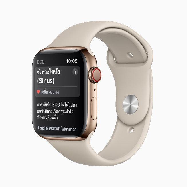 apple-watch_result-sinusrhyth