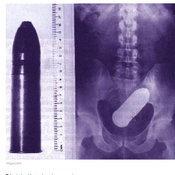รวมภาพเอกซเรย์ สิ่งแปลกปลอมที่เจอในร่างกาย