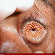 trypophobia โรคกลัวรู คำฮิตในโลกโซเชียล