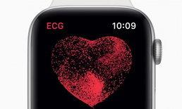 Apple ปล่อยอัพเดต watchOS 5.1.2 พร้อมฟีเจอร์ตรวจคลื่นหัวใจ ECG บน Apple Watch Series 4