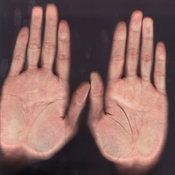 คำทำนายจากรูปก้นหอยบนนิ้วมือ