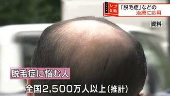 ปลูกผม 10,000 เส้นใน 20 วัน! สถาบัน RIKEN แห่งญี่ปุ่นกับนวัตกรรมใหม่สำหรับคนหัวล้าน