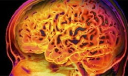 นักวิจัยพบเซลล์ประสาทที่สนแต่เซ็กส์มากกว่าอาหาร และมีในเฉพาะผู้ชายเท่านั้น
